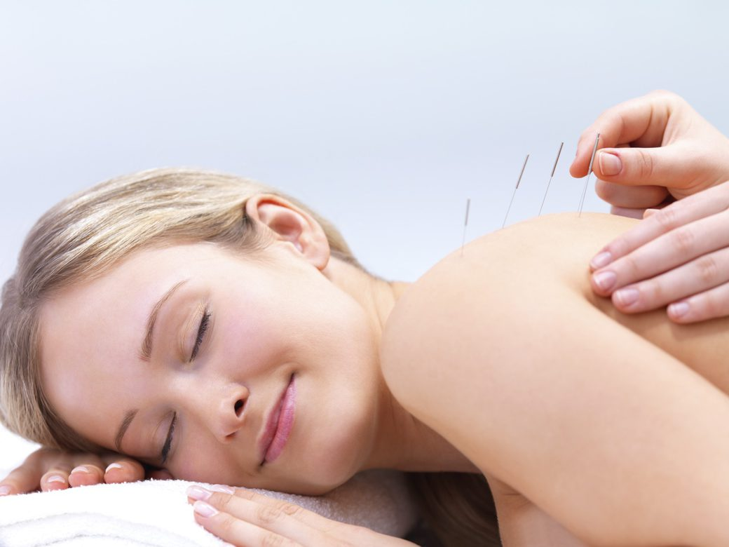 Acupuncture Treatment Norwich